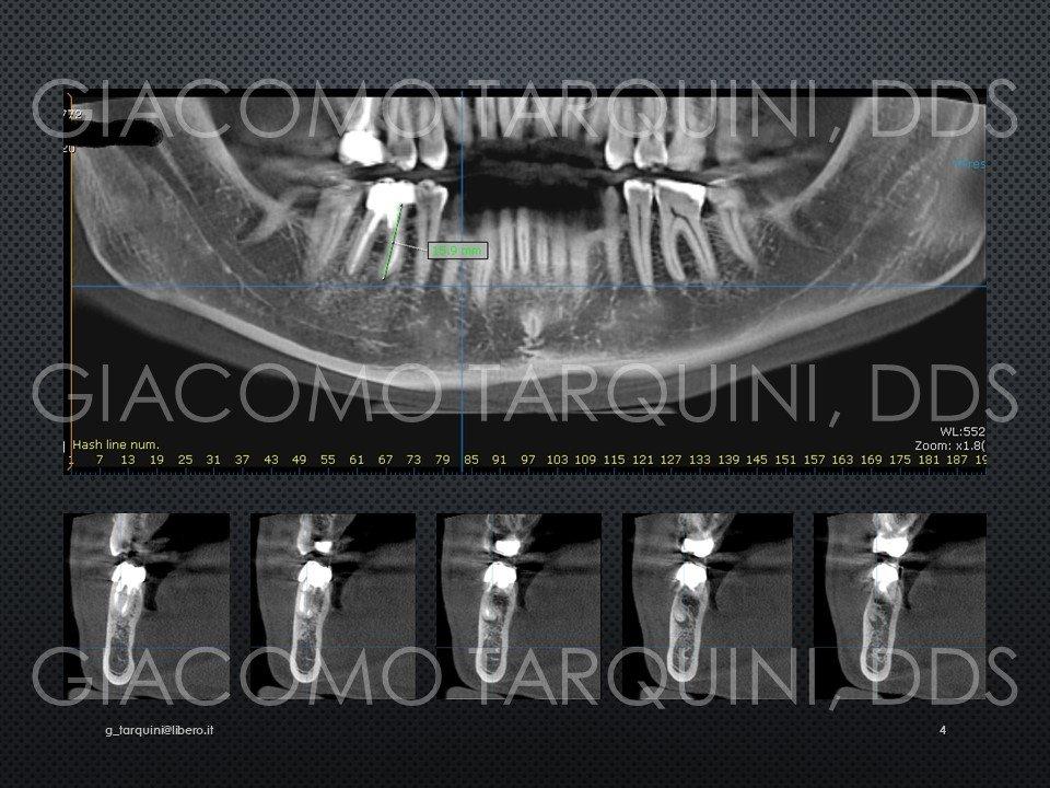 Diapositiva4.JPG.d6f0036167b59732a5859d313a879d48.JPG