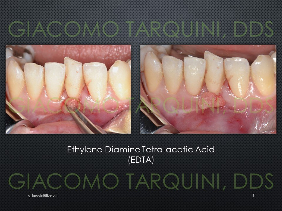 Diapositiva5.JPG.0a0a5b365c223b420e4ddec0baf32487.JPG