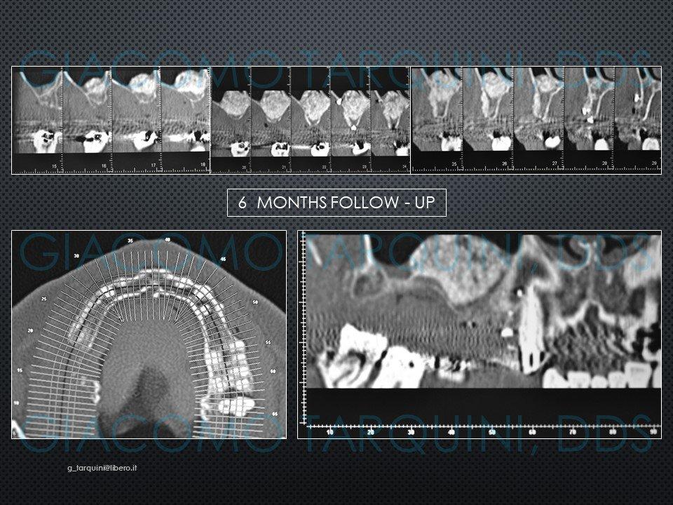 Diapositiva21.JPG.ac5a556c24a1758c5801a239e3e22dc1.JPG