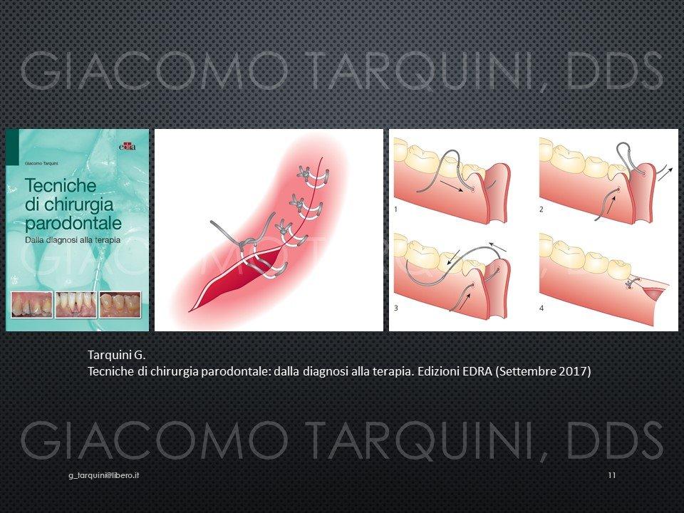 Diapositiva11.JPG.1b5bbd488c2ede096664465e2e44e81b.JPG