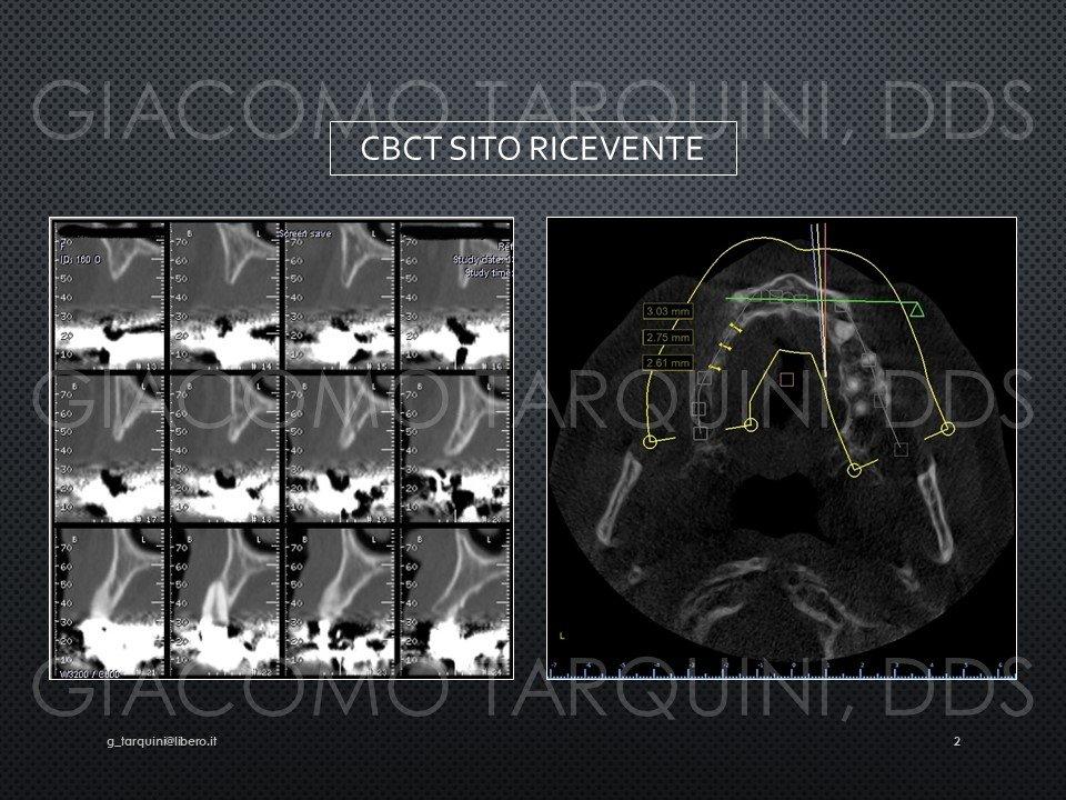 Diapositiva2.JPG.77abe46cad53f001221e92b0806a6ffd.JPG