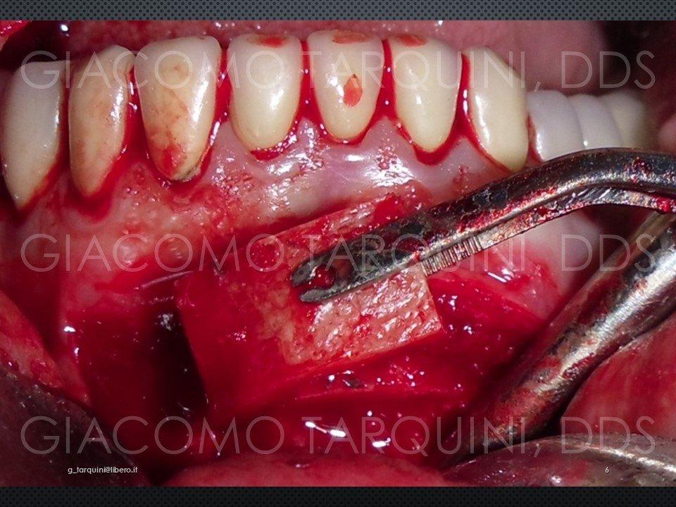 Diapositiva6.JPG.2b003d8e309f4cc49f0d6b6852bf63b4.JPG