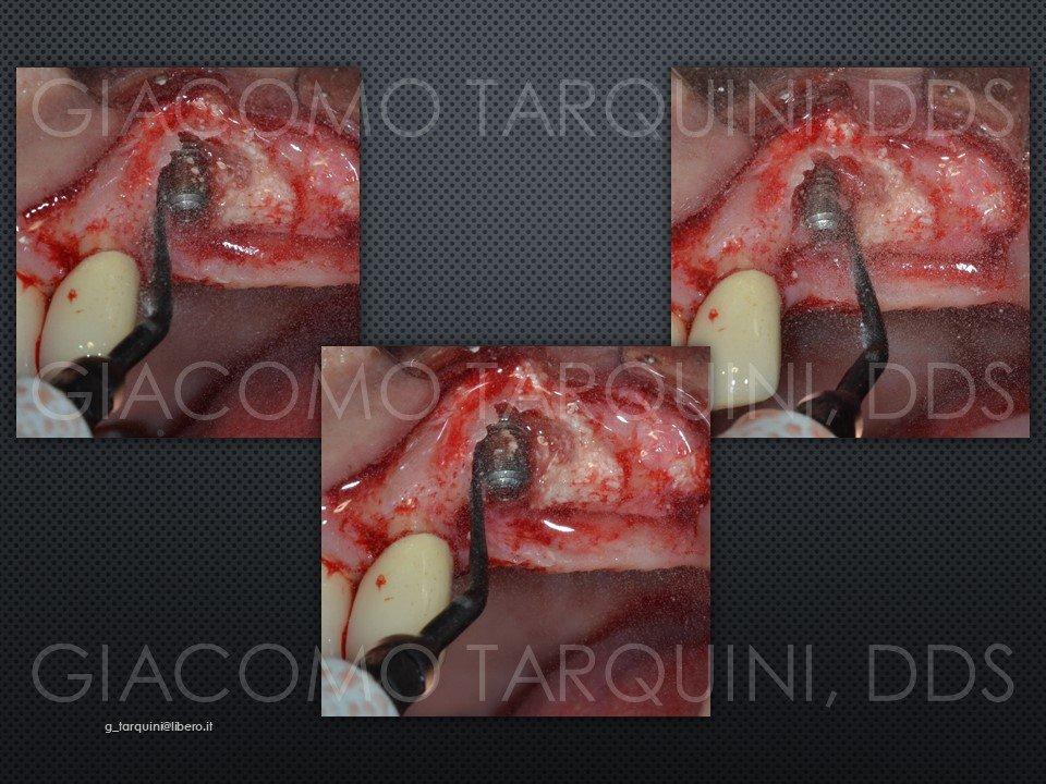 Diapositiva11.JPG.0ff39d1e6a96227981a1978e8c67becb.JPG