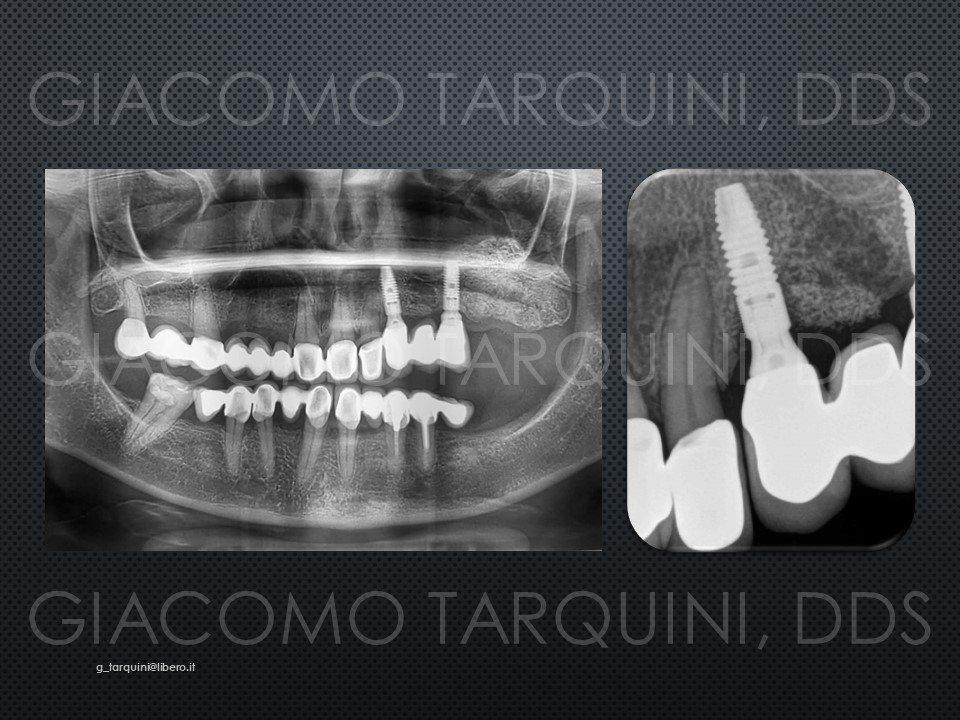 Diapositiva2.JPG.617df2f504c22cdf69a08d3665a0008b.JPG